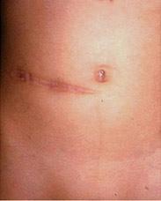laparoscopic surgery for appendicitis, mumbai, india, Human Body