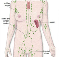 enlarged inguinal lymph nodes