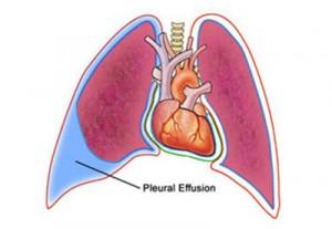 Fluid In The Chest (Pleural Effusion)