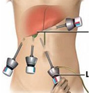 How much does laparoscopic gallbladder surgery cost