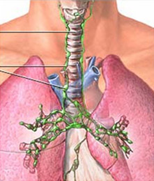 Enlarged lymph nodes in the chest laparoscopyindia lymph nodes in the chest marked in green ccuart Gallery
